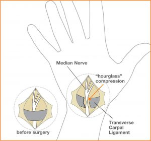 Carpal_Fig3[1]
