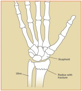 WristFracture_Fig1[1]
