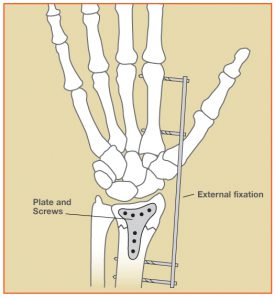 WristFracture_Fig2[1]